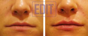 lips12 300x125 Ботокс губ