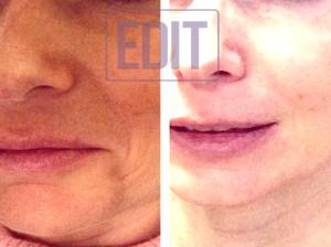 lips13 300x224 Ботокс губ