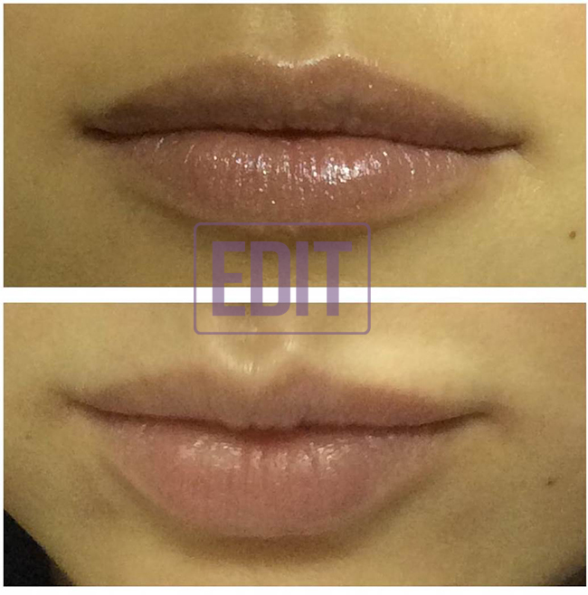 lips3 Ботокс губ