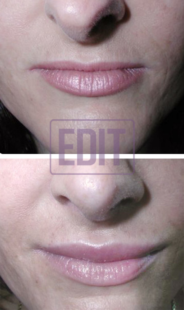 lips4 Ботокс губ