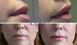 lips5 300x175 Ботокс губ