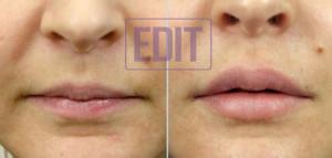 lips6 300x143 Ботокс губ