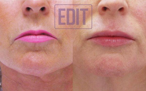 lips7 Ботокс губ
