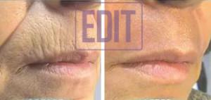 lips8 300x142 Ботокс губ