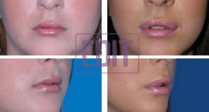 lips9 300x161 Ботокс губ