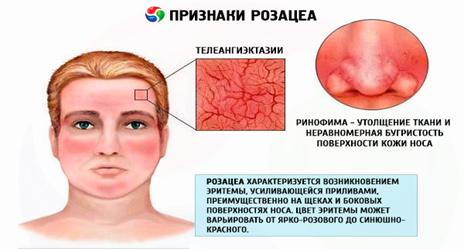 Сочетанные протоколы лечения розацеа препаратами Flosal