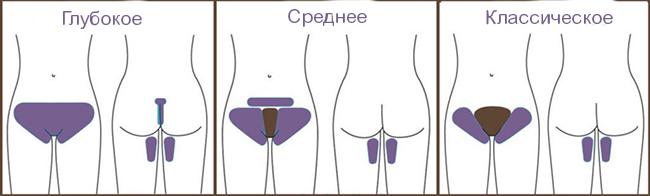bikini2 Лазерная эпиляция зоны бикини