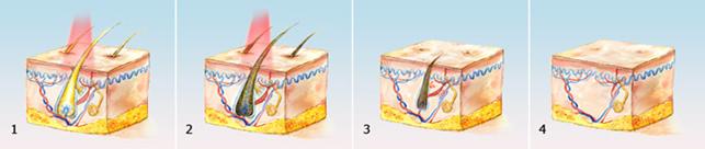telo 5 ТОП уходы за лицом и телом в преддверии пляжного сезона
