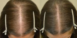 volosy4 300x150 Лечение выпадения волос у женщин