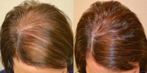 volosy6 300x150 Лечение выпадения волос у женщин