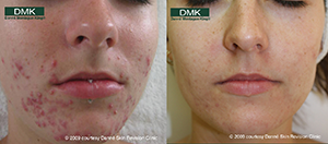 Acne Before After Image from DMK 3 Домашний уход при угревой болезни