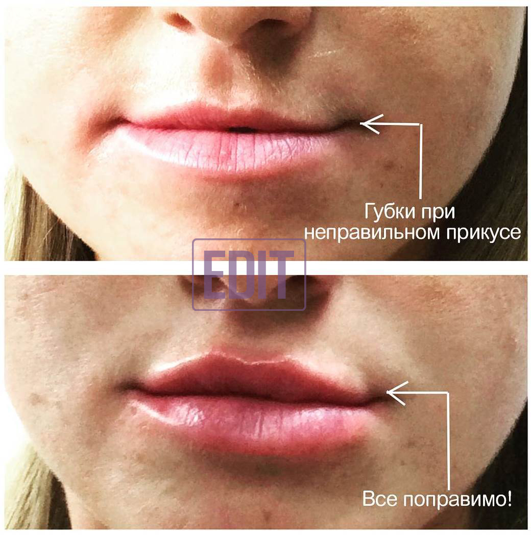 conturnaya plastika18 Контурная пластика лица