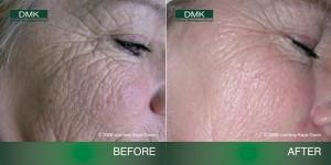 wrinkles before after 300x150 Домашний уход: управление возрастом