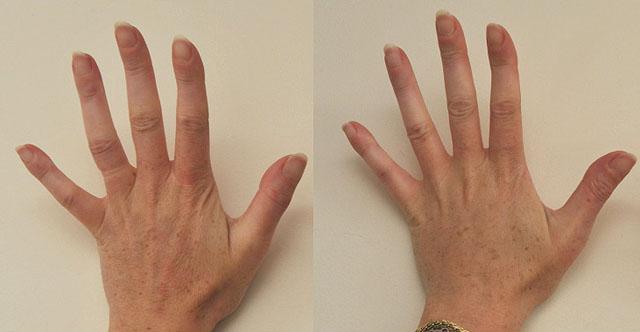 piling kistej ruk Пилинг рук