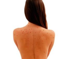 procedury lechenija pryshhej na spine Лечение прыщей на спине