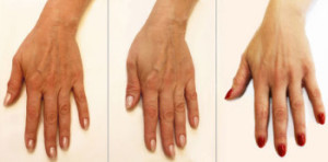 Пилинг рук