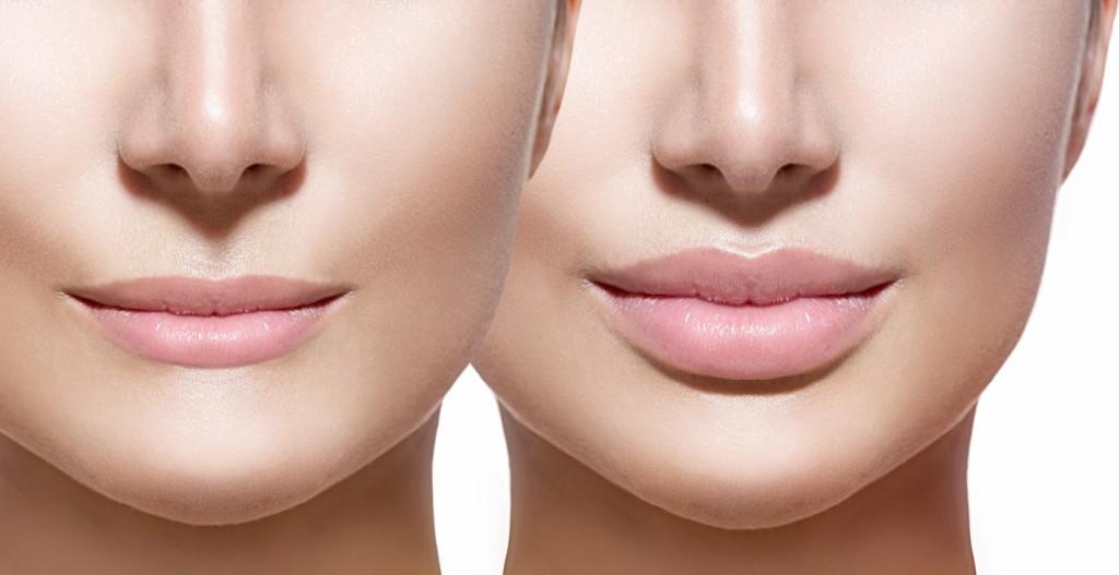 uvelicheniye gub 1024x527 Увеличение губ