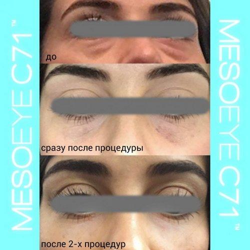 Meso EyeC7109161 «Selfregeneration» как новое эффективное направление в глобальном омоложении организма
