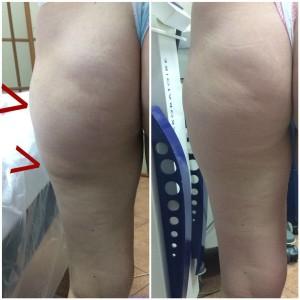 BP8NlonjzrN 300x300 Лечение целлюлита