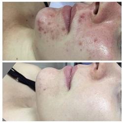 BpgunboBpgK1 Лечение угревой болезни и пигментации