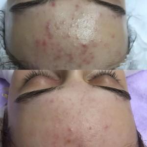 Bw w 1ln2lP 300x300 Лечение угревой болезни и пигментации