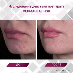 Dermahel hsr 300x300 Акция на процедуры биоревитализации и мезотерапии препаратами prostrolane