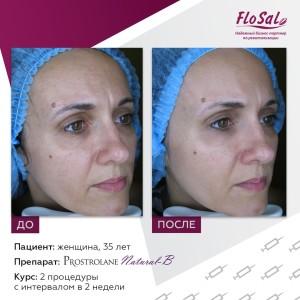 Natural b1 300x300 Акция на процедуры биоревитализации и мезотерапии препаратами prostrolane